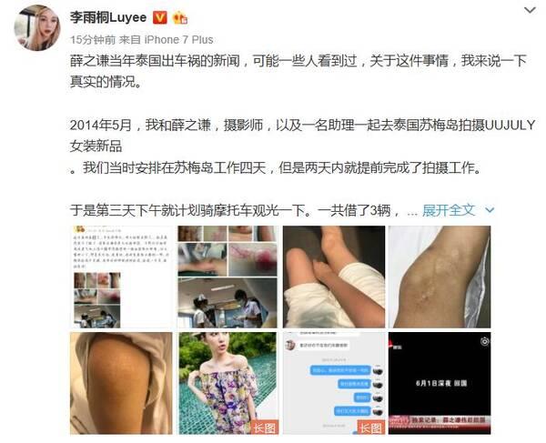 李雨桐爆料薛之谦车祸真相:用她的伤口照片卖惨