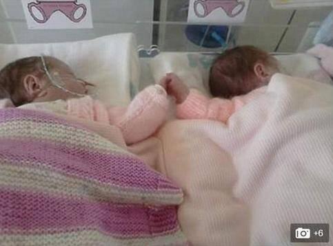 双胞胎姐妹早产后分开治疗7周 一见面马上牵手