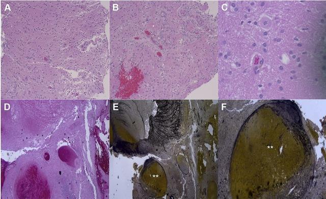 病例学习 胶质母细胞瘤合并流量相关动脉瘤