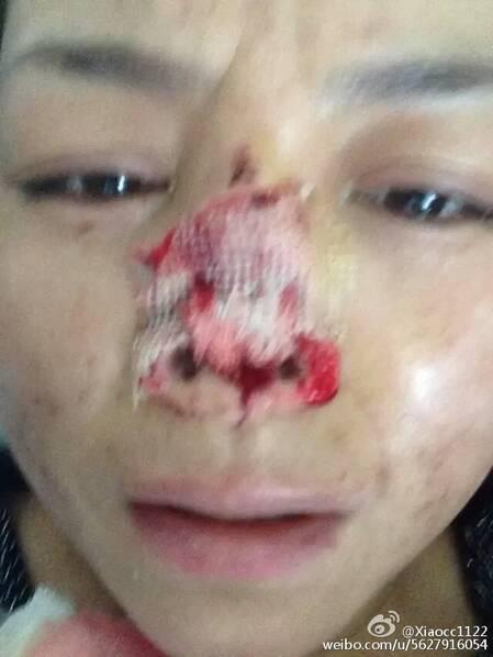 女子遭家暴被丈夫割鼻子:他说鼻子最好看 - 十年井绳 - 十年井绳博客