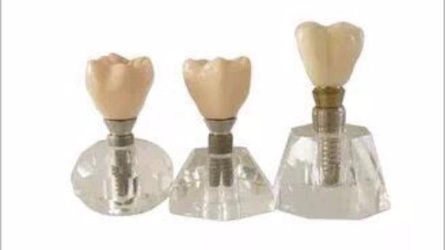 种植牙是永久多久吗?种一颗大概要多久?