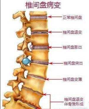 腰椎间盘突出自我训练办法