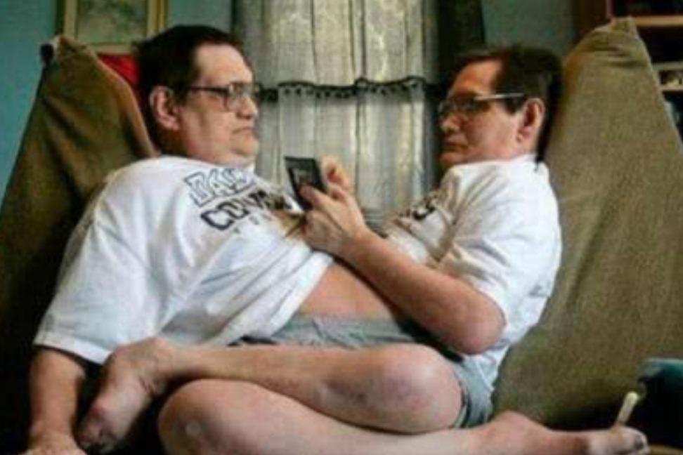 世界上最长寿的连体兄弟,共用生殖系统68年,直言想谈个恋爱!
