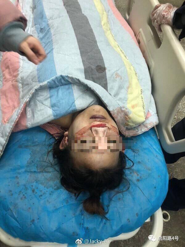 19岁少女隆鼻命丧手术台 关联公司屡涉虚假宣传