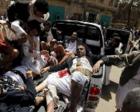 今日新闻联播必读:美媒称炸死40名也门儿童的炸弹来自美国