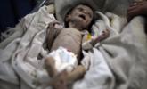 战区新生儿:营养不良枯瘦如柴|组图
