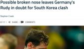 德国铁腰鼻骨骨折或无缘生死战?勒夫:他能出场