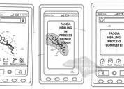 "Moto专利曝光:一款""形状记忆热自修复""手机屏幕"