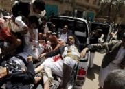 8.18|美媒称炸死40名也门儿童的炸弹来自美国