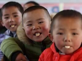 如何改变农村儿童的命运? 比教育更重要的是,改善他们的营养状况