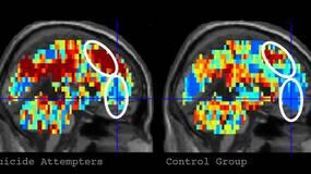 预防自杀:脑成像技术和AI的可能性