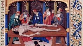 从狗咬到截肢:中世纪手术要则