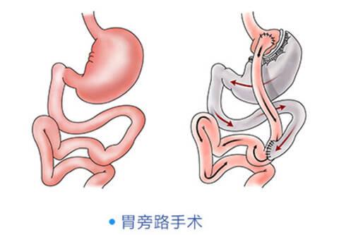 胃旁路手术十天左侧依然疼痛_北京胃旁路手术_胃旁路手术十天左侧依然疼痛