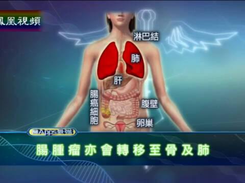 医APPS最强 扩散性大肠癌