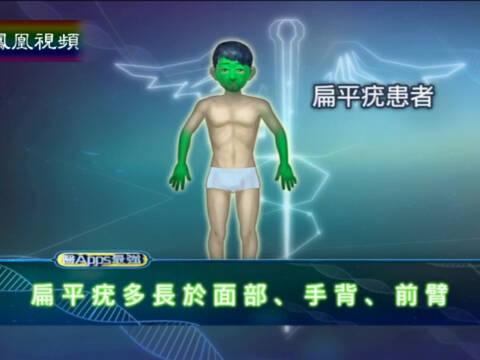 医APPS最强 人类乳头状病毒