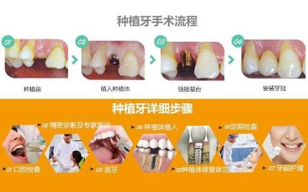 1、种植牙手术之前需要的准备工作 (1)对口腔进行检查,包括口腔CT以及口腔内图片,同时对口腔炎症等各项指标做一个全面的评估 (2)制作口腔模型,制定手术方案 下面开始讲一下手术具体过程 2、首先要切开牙龈,露出牙骨窗,现在一般都采用微创技术,所以不用担心开口问题,可以放心的种植。 3、其次将牙槽骨打孔,就是在牙槽骨上面钻个小孔,方便放入人工种植体。 4、另外在植入种植体这就是我们的牙根,装入后就可以感受到自己牙齿的感觉,先进的仿生技术可以让种植体和人体完美融合。