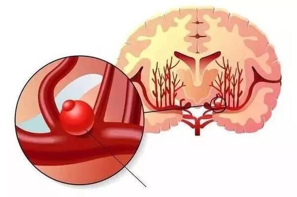 科普丨超凶险 脑动脉瘤到底是什么疾病,它为什么会如此可怕