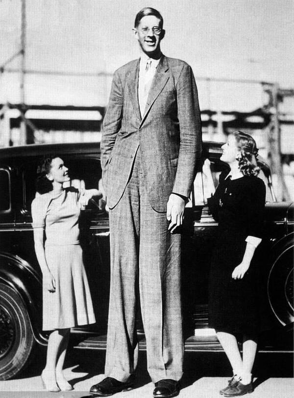 1918年出生的美国人罗伯特·潘兴·瓦德罗,因脑下垂体长了肿瘤而患