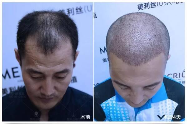 2018年,刘海龙作为美利丝植发见证者之一,接受了植发手术.
