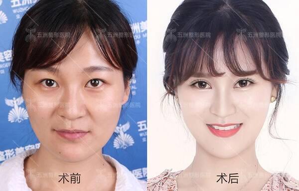 武汉五洲整形医院双眼皮医生