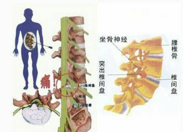 腰椎间盘膨出疗法_腰椎间盘《膨出》和《突出》的区别与特征(配图)