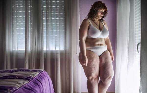 250斤胖子手术减肥后变美女