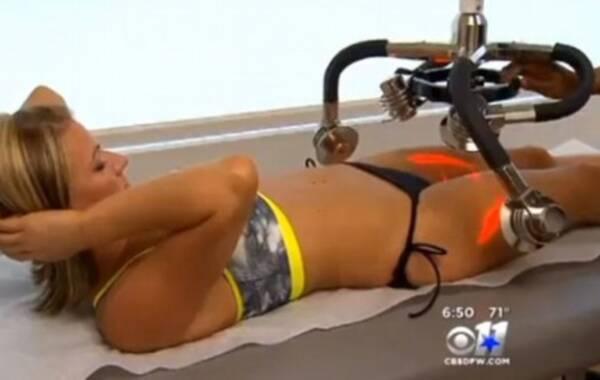 据英国《每日邮报》报道,美国达拉斯女孩塔拉(Tara)花费999美元(约合人民币6300元)为自己的大腿做激光减脂,试图扩大自己两腿之间的缝隙(thigh gap),从而显得苗条和性感。