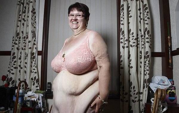 据英国《每日邮报》1月20日报道,最新的英国国家医疗服务体系(NHS)数据显示,如今在英国,近三分之二的人有肥胖症,而越来越多的人选择通过减肥手术降低体重。