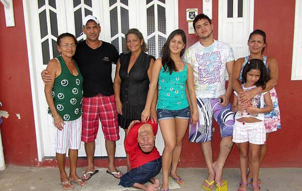 据外媒9月1日报道,37岁的巴西男子克劳迪奥-维埃拉-奥利维拉有着不同于常人的外貌。他的脖子向后背折下,头部几乎紧贴着后背,头颈上下颠倒。图为克劳迪奥和家人。