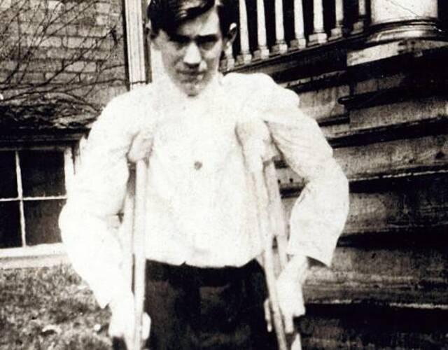 14岁的Frank P,在煤矿厂工作的时候,被一辆汽车压断了双腿。图片来源:高品图像