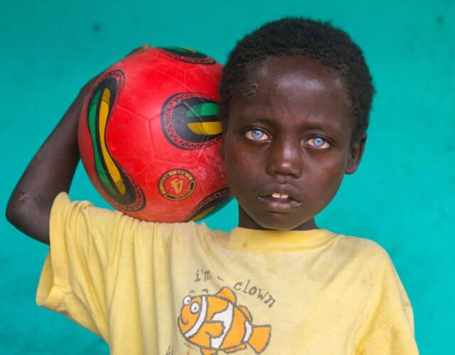 非洲男孩患罕见病症天生蓝眼睛似混血图片