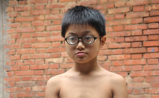 11岁小男孩近视2200多度 镜片比啤酒瓶还厚