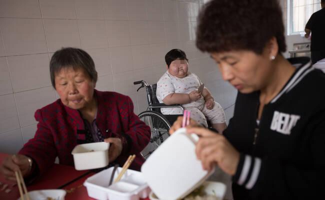 7岁女孩4年暴涨120斤 为减肥花光近百万家财