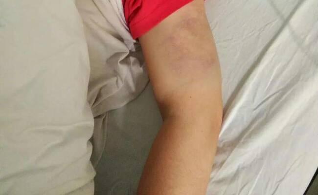 杭州一女子因工资补贴娘家,被打到住院16天!