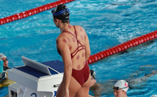 亚运会游泳选手热衷拔罐 中医秘方流行