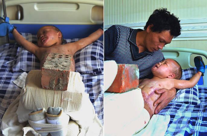 河南5岁男童烧伤,爸爸用30斤砖头压孩子腿上