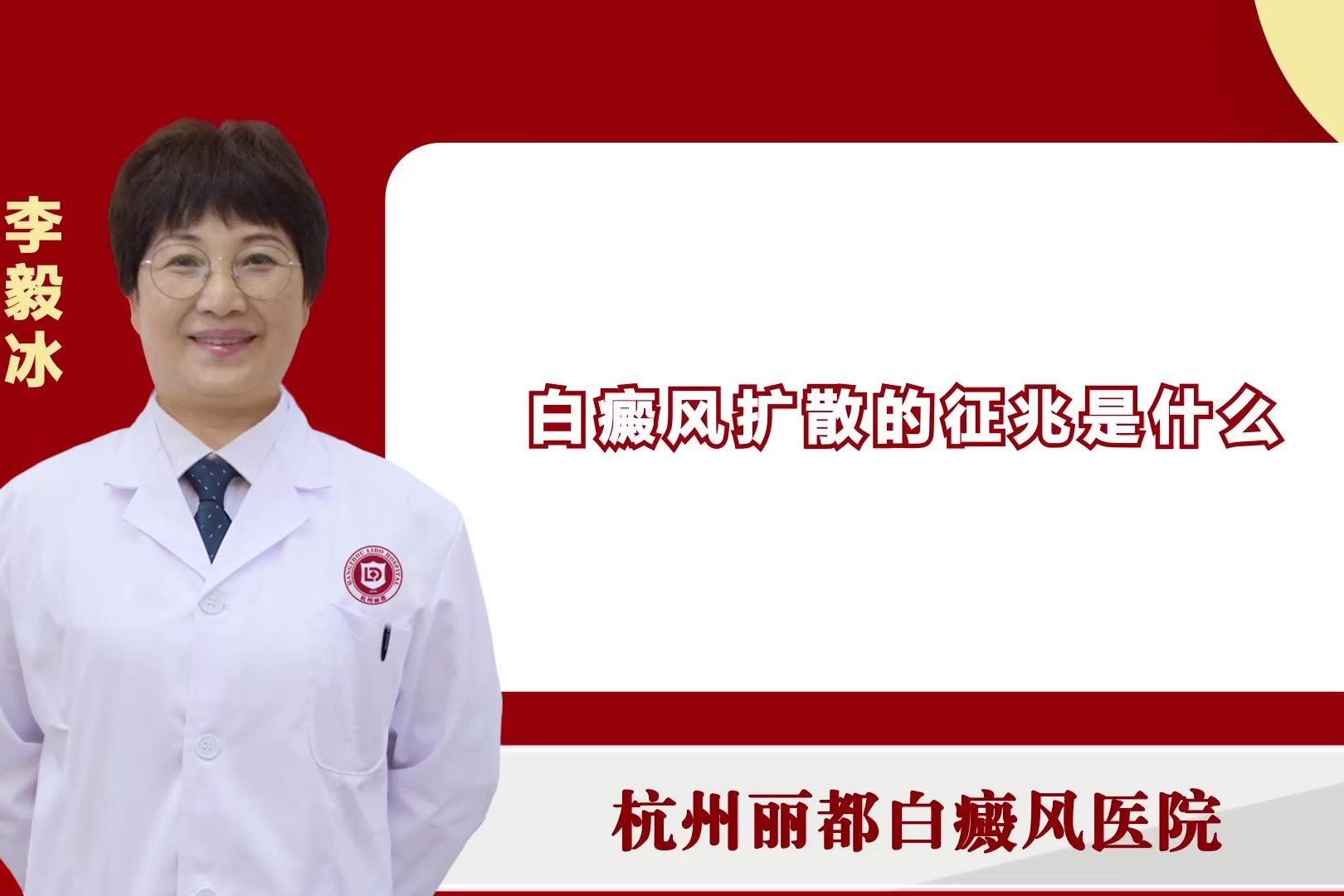 白癜风扩散的征兆是什么?杭州丽都白癜风医院李毅冰医生来讲解