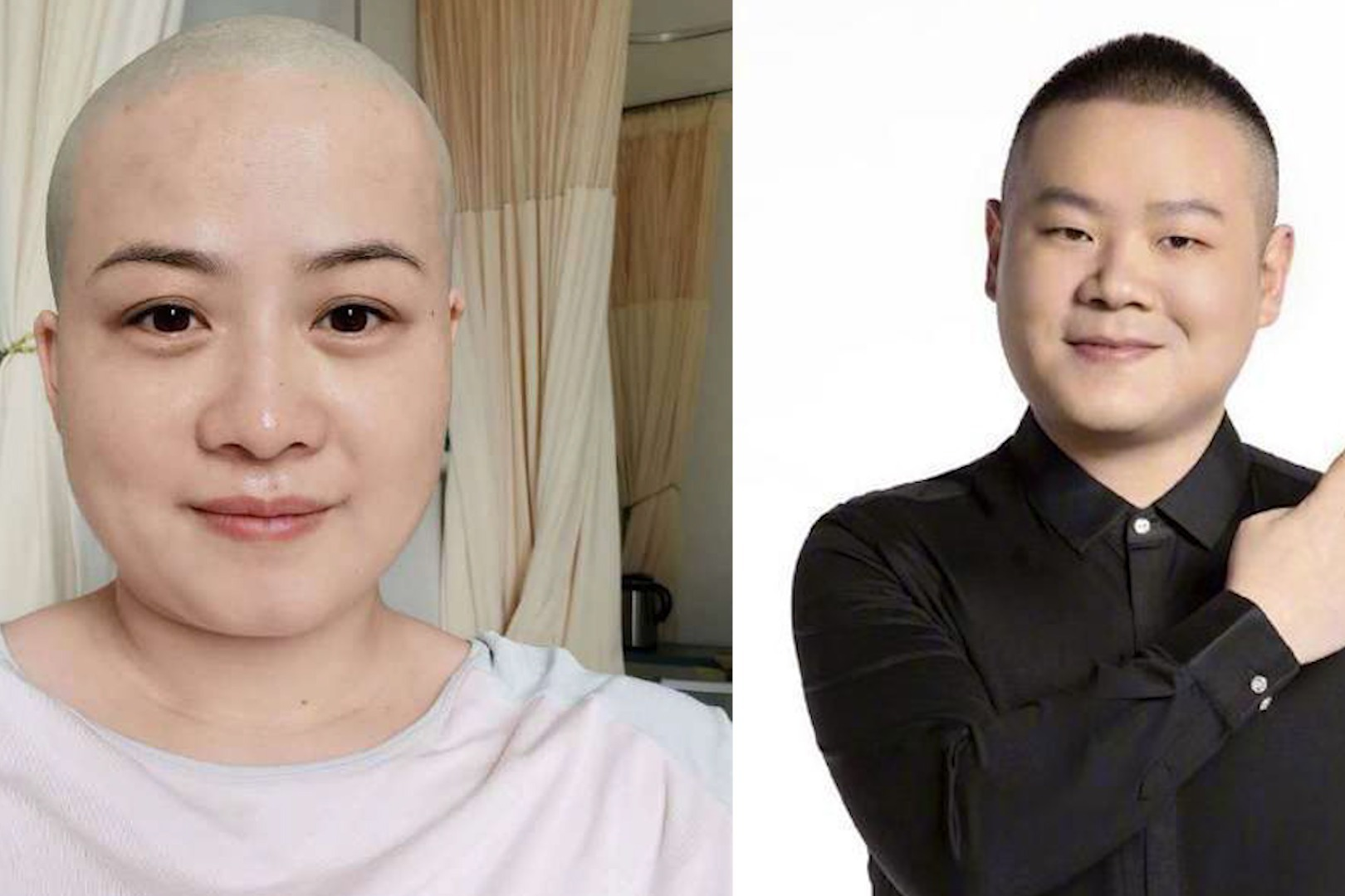 岳云鹏妻子生病剃光头,意外撞脸老公,愿身体早日康复!