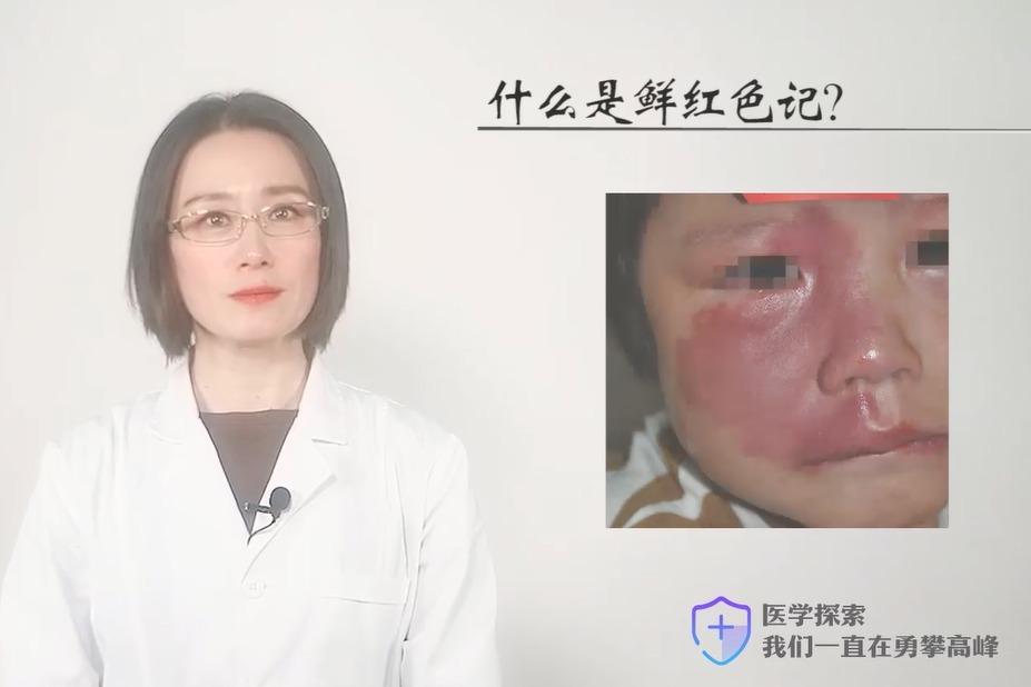 上海胎记医院上海长江医院肖萍主任解析:什么是鲜红斑痣?