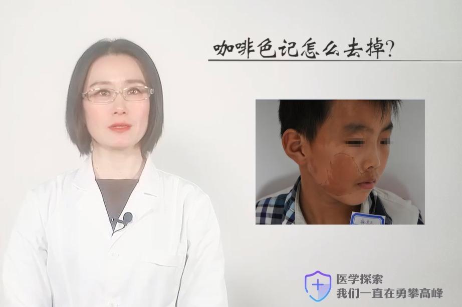 上海胎记医院上海长江医院肖萍主任解析:咖啡色记怎么去掉?
