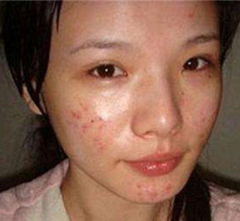 油痘肌显得好邋遢?美容师分享:4+1护肤方式,让肌肤清透过夏天