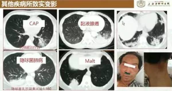 60% 肺结核患者正被延误确诊,只因忽视这 5 点.