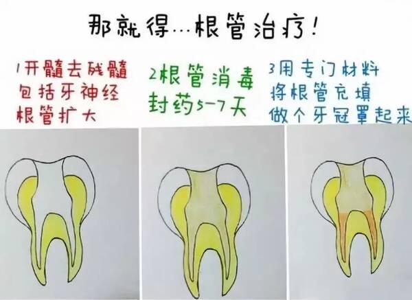 蛀牙怎么办_口腔卫生的重要性蛀牙引起口臭怎么办?大洞不补,小洞